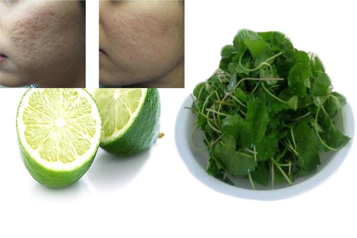 Cách trị sẹo lõm lâu năm bằng rau má kết hợp với chanh.