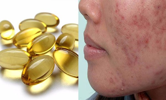 Trị sẹo lõm sau khi tẩy nốt ruồi bằng vitamin E