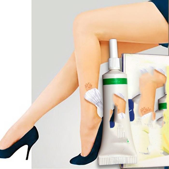 Cách trị sẹo thâm lâu năm ở chân bằng kem trị sẹo