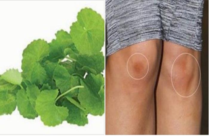 Trị sẹo thâm ở chân lâu năm bằng rau má mang lại hiệu quả tốt cho người điều trị.