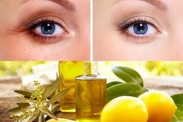 Tri thâm quầng mắt công hiệu hơn khi dùng dầu oliu và chanh