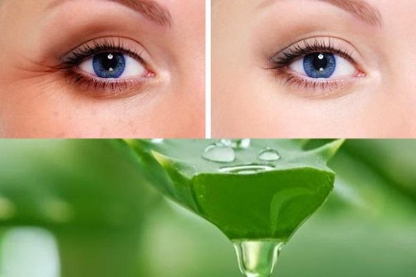 Cách trị thâm quầng mắt đơn giản tại nhà với gel nha đam