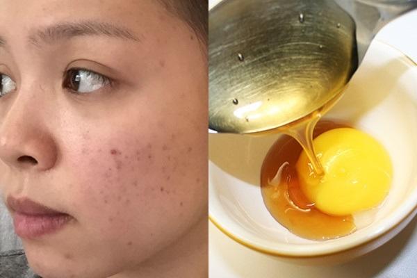 Cách trị vết thâm mụn hiệu quả sau 1 tuần với trứng gà