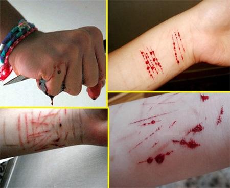 Cảnh báo hội chứng tự hủy hoại bản thân và những hậu quả đau lòng trong giới trẻ  - Ảnh 1