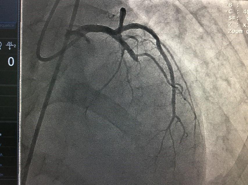 Cứu sống cụ ông 71 tuổi nhồi máu cơ tim, bất tỉnh tại sảnh bệnh viện, bác sĩ khuyến cáo cách phòng bệnh - Ảnh 1