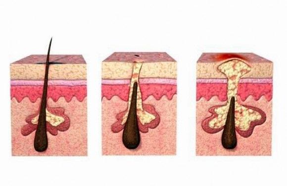 Phụ nữ và bệnh khó nói: Cách đề phòng viêm nang lông vùng kín hiệu quả - Ảnh 2
