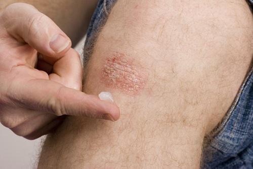 Dù viêm da hay sẹo, đây là 2 cách khiến bạn không còn phải 'lăn tăn'! - Ảnh 1