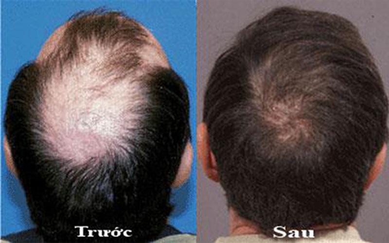 Tóc sẽ mọc nhanh và hết hói sau khi sử dụng vitamin B1 ủ tóc đều đặn