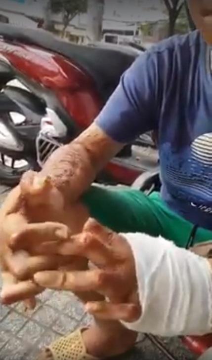 Clip rơi nước mắt: Chồng liệt 2 tay vì bỏng xăng khi đang sửa xe mướn nuôi gia đình, vợ nhẫn tâm bỏ đi để lại con gái 7 tuổi - Ảnh 2