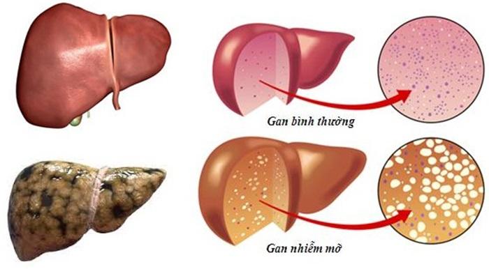 Bệnh gan nhiễm mỡ rất nguy hiểm có thể gây ra ung thư gan.