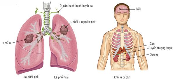Ung thư phổi có thể di căn sang nhiều bộ phận khác trên cơ thể.
