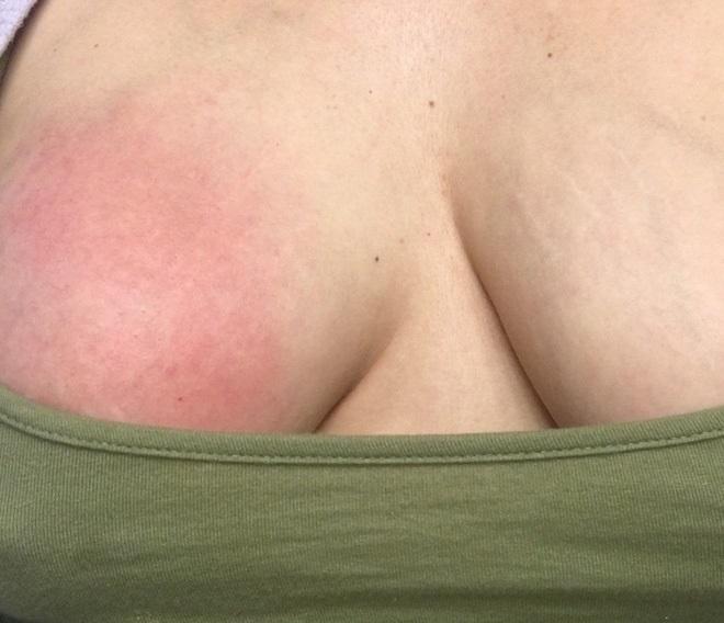 Hình ảnh bầu ngực sưng đỏ chứa đầy dịch cho thấy cho con bú không dễ dàng như nhiều người nghĩ - Ảnh 1