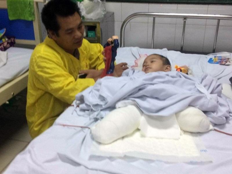 Xót xa bé 4 tuổi bị đá núi lở đè nát cả 2 chân, tạm qua cơn nguy kịch nhưng vẫn phải thêm nhiều lần phẫu thuật - Ảnh 1