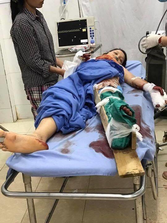 Xót xa bé 4 tuổi bị đá núi lở đè nát cả 2 chân, tạm qua cơn nguy kịch nhưng vẫn phải thêm nhiều lần phẫu thuật - Ảnh 2