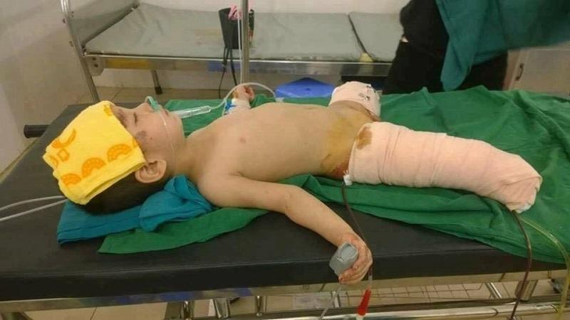 Xót xa bé 4 tuổi bị đá núi lở đè nát cả 2 chân, tạm qua cơn nguy kịch nhưng vẫn phải thêm nhiều lần phẫu thuật - Ảnh 3