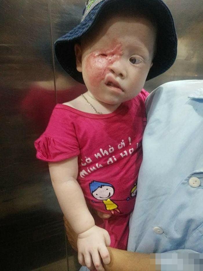 Tương lai vô định của bé gái 2 tuổi bạch tạng bị hỏng một mắt, sẹo bỏng chằng chịt khuôn mặt - Ảnh 2